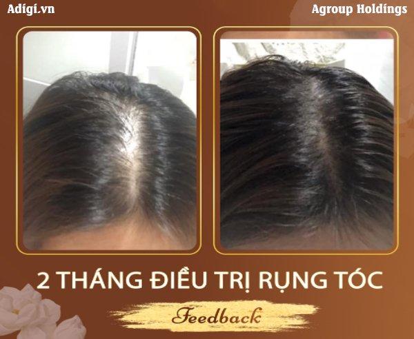Khách hàng điều trị rụng tóc thành công sau 2 tháng